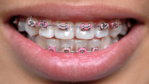 Braces Delta Smiles in Antioch Brentwood CA