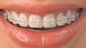 Ceramic Braces Delta Smiles in Antioch Brentwood CA